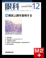 眼科 2018年12月号 60巻13号 特集 黄斑上膜を習得する【電子版】