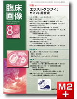 臨床画像 2018年8月号 エラストグラフィ:MR vs 超音波