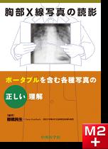 胸部X線写真の読影―ポータブルを含む各種写真の正しい理解