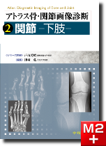 アトラス骨・関節画像診断 2.関節-下肢-