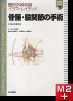 整形外科手術イラストレイテッド骨盤・股関節の手術[動画付き]