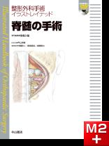 整形外科手術イラストレイテッド 脊髄の手術[動画付き]