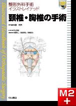 整形外科手術イラストレイテッド 頚椎・胸椎の手術[動画付き]