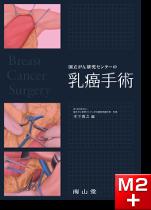国立がん研究センターの乳癌手術