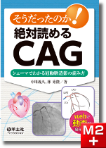 そうだったのか! 絶対読めるCAG シェーマでわかる冠動脈造影の読み方