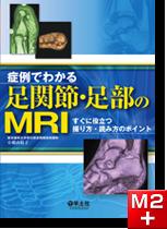 症例でわかる足関節・足部のMRI