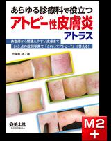 あらゆる診療科で役立つアトピー性皮膚炎アトラス
