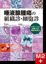 唾液腺腫瘍の組織診・細胞診