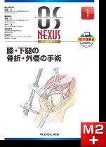 OS NEXUS1 膝・下腿の骨折・外傷の手術