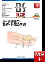 OS NEXUS3 手・手関節の骨折・外傷の手術