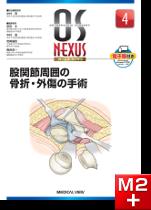 OS NEXUS4 股関節周囲の骨折・外傷の手術