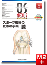 OS NEXUS5 スポーツ復帰のための手術 膝