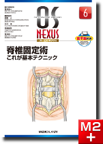 OS NEXUS6 脊椎固定術 これが基本テクニック