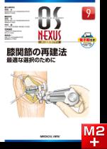 OS NEXUS9 膝関節の再建法 最適な選択のために