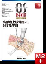 OS NEXUS13 高齢者上肢骨折に対する手術