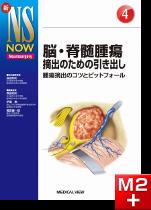 新NS NOW 4 脳・脊髄腫瘍摘出のための引き出し