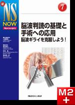 新NS NOW 7 脳波判読の基礎と手術への応用