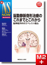 新NS NOW 10 脳動静脈奇形治療のこれまでとこれから