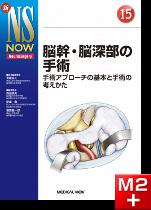 新NS NOW 15 脳幹・脳深部の手術