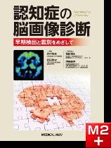 認知症の脳画像診断 早期検出と鑑別をめざして