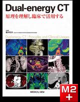 Dual-energy CT ― 原理を理解し臨床で活用する