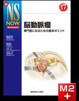 新NS NOW 17 脳動脈瘤 専門医になるための基本ポイント