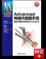 新NS NOW 19 Advanced神経内視鏡手術 神経内視鏡の可能性をさらに拡げる