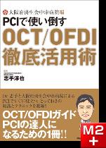 大阪府済生会中津病院編 PCIで使い倒す OCT/OFDI徹底活用術