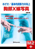 めざせ!基本的読影力の向上 胸部X線写真 改訂2版