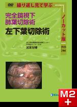 DVD 完全鏡視下肺葉切除術 左下葉切除術