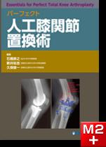 パーフェクト 人工膝関節置換術