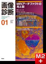 画像診断 2012年1月号(Vol.32 No.1) MRIアーチファクトの光と影