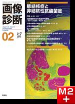 画像診断 2012年2月号(Vol.32 No.2) 肺結核症と非結核性抗酸菌症