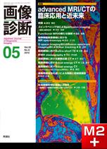 画像診断 2012年5月号(Vol.32 No.6) advanced MRI/CTの臨床応用と近未来