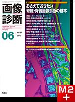 画像診断 2012年6月号(Vol.32 No.7) おさえておきたい 脊椎・脊髄画像診断の基本