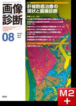 画像診断 2012年8月号(Vol.32 No.9) 肝細胞癌治療の現状と画像診断