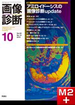 画像診断 2012年10月号(Vol.32 No.12)アミロイドーシスの画像診断update