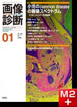 画像診断 2013年1月号(Vol.33 No.1) 小児のcommon diseaseの画像スペクトラム -そうだったのか、小児画像-