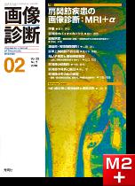 画像診断 2013年2月号(Vol.33 No.2) 肩関節疾患の画像診断:MRI+α