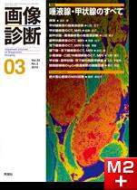 画像診断 2013年3月号(Vol.33 No.3) 唾液腺・甲状腺のすべて