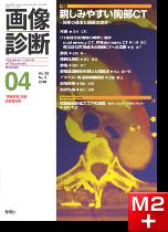 画像診断 2013年4月号(Vol.33 No.5) 親しみやすい胸部CT -診断の基本と最近の進歩-