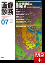 画像診断2013年7月号(Vol.33No.8)膵炎・膵腫瘍の画像診断-稀な疾患との鑑別も含めて-