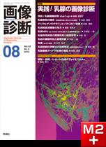 画像診断 2013年8月号(Vol.33 No.9) 実践!乳腺の画像診断