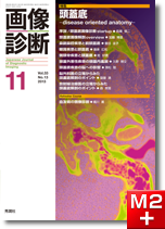 画像診断 2013年11月号(Vol.33 No.13) 頭蓋底 -disease oriented anatomy-