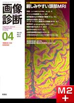 画像診断 2014年4月号(Vol.34 No.5) 親しみやすい頭部MRI