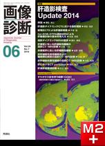 画像診断 2014年6月号(Vol.34 No.7) 肝造影検査 Update 2014