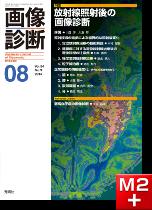 画像診断 2014年8月号(Vol.34 No.9) 放射線照射後の画像診断