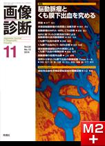 画像診断 2014年11月号(Vol.34 No.13) 脳動脈瘤とくも膜下出血を究める