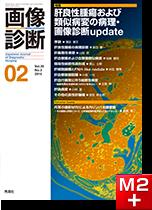 画像診断 2015年2月号(Vol.35 No.2) 肝良性腫瘍および類似病変の病理・画像診断update