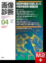 画像診断 2015年4月号(Vol.35 No.5) 解剖学的構造を念頭においた中枢神経疾患の画像診断